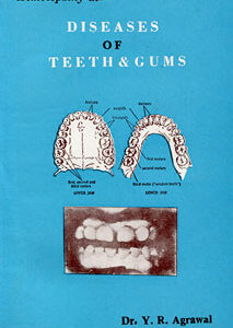 Agrawal Y.R. - Diseases of Teeth & Gums