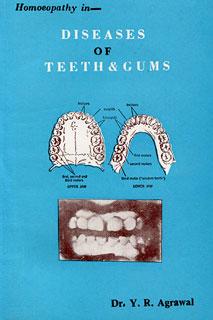 Agrawal Y.R. - Diseases of Teeth & Gums