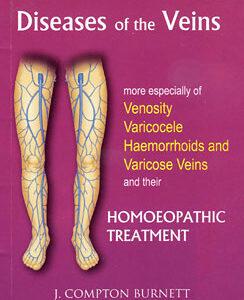 Burnett J.C - Diseases of the Veins