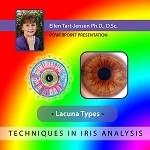 Tart-Jensen E. - Iris Lacuna Types - CD-ROM